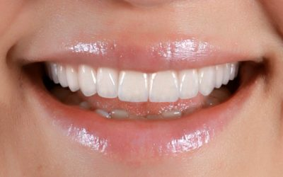 Considering the Vertical Dimension – From veneers to full mouth rehabilitation